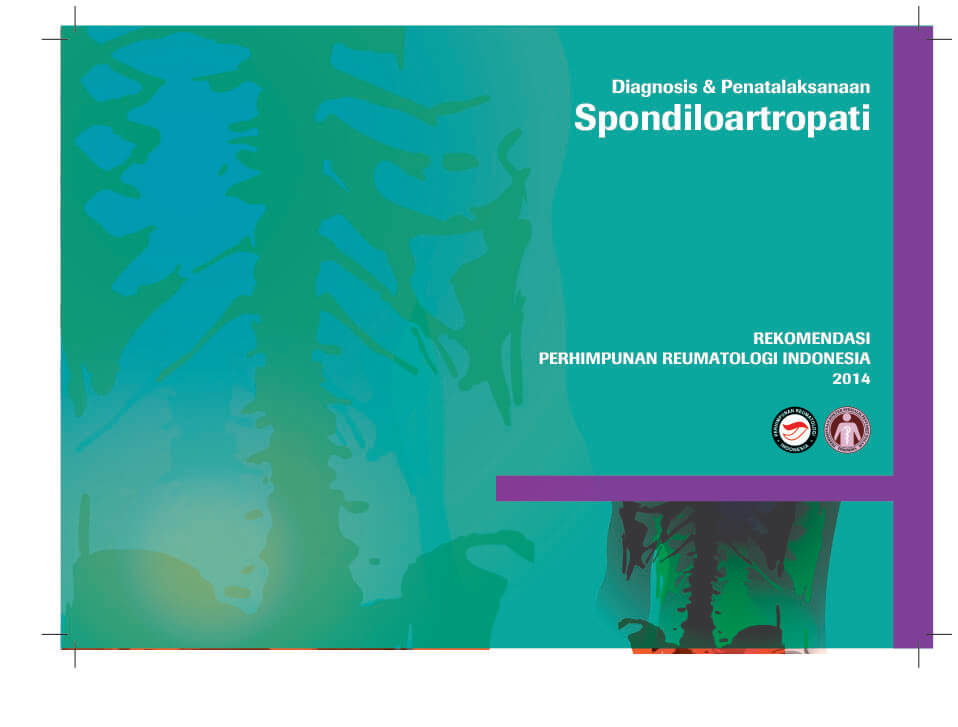 Diagnosis & Management of Spondyloarthropathy