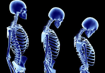 #1 What is Osteoporosis