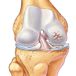 Calcification of Joints or Osteoarthritis
